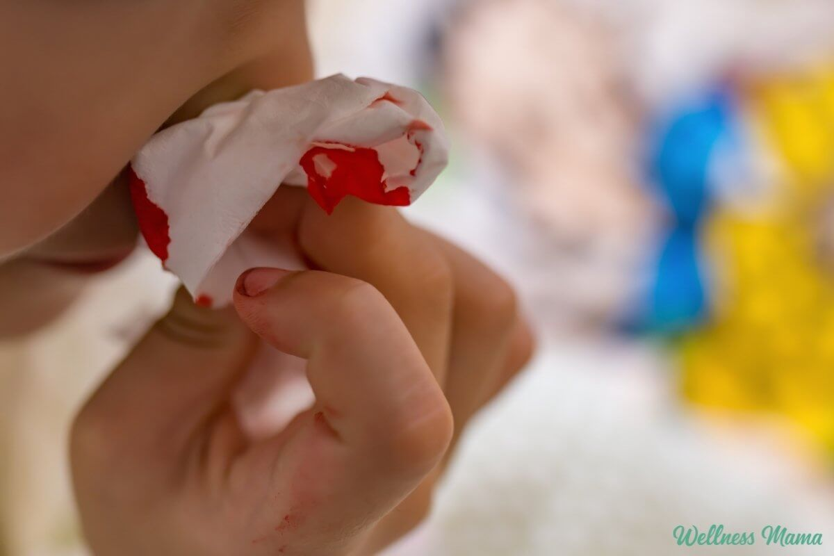 What Causes Nosebleeds (& How to Stop Them)